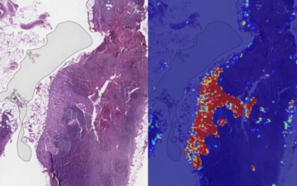 谷歌AI诊病新进展,转移性乳腺癌检测准确率达