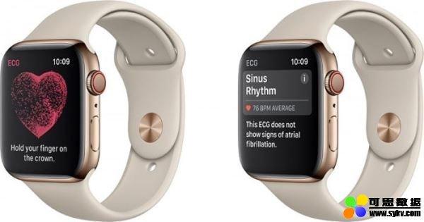 斯坦福与苹果基于苹果 Watch 检测心率异常