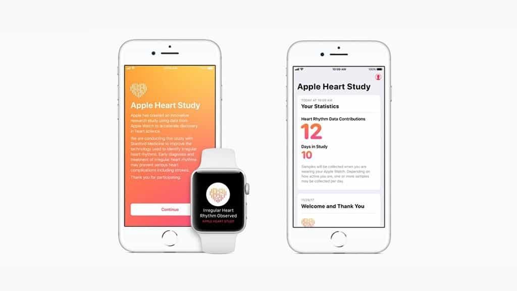 史丹福大学研究指,Apple Watch 侦测心律不整准确