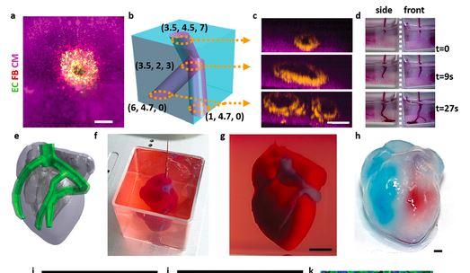 世界上首颗3D打印心脏问世!有血有肉会跳动