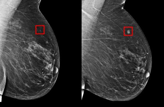 MIT 人工智能系统助女性提早五年识别乳癌徵状